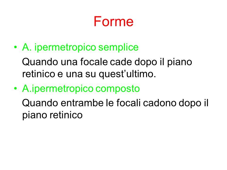 Forme A. ipermetropico semplice Quando una focale cade dopo il piano retinico e una su questultimo. A.ipermetropico composto Quando entrambe le focali