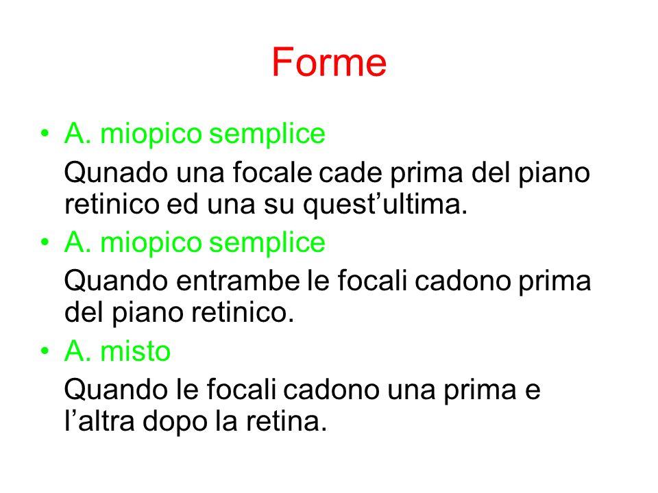 Forme A. miopico semplice Qunado una focale cade prima del piano retinico ed una su questultima. A. miopico semplice Quando entrambe le focali cadono