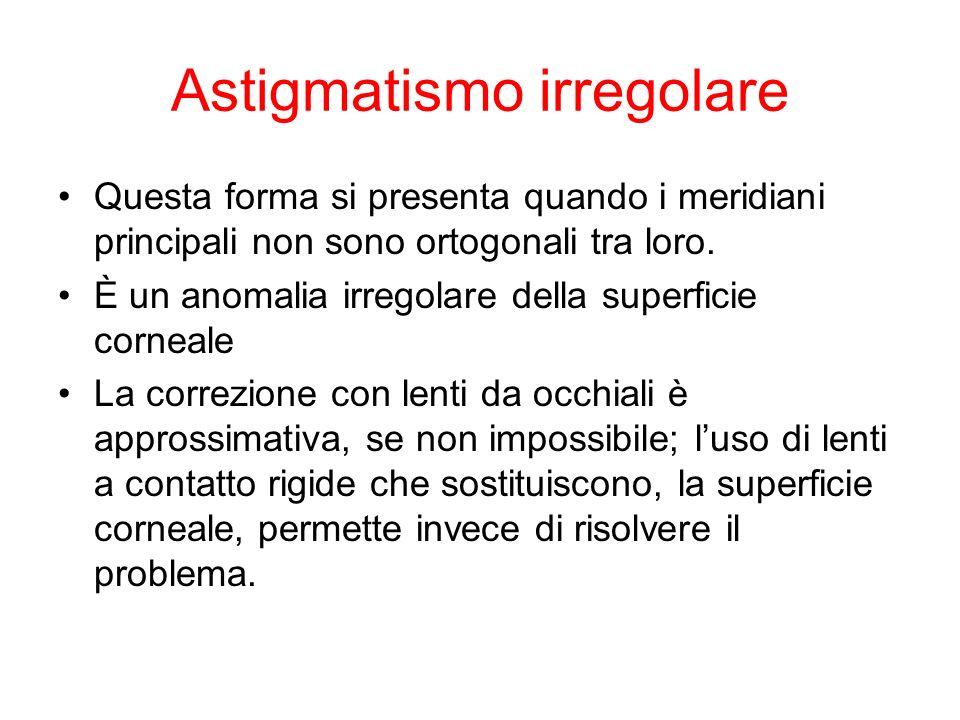 Astigmatismo irregolare Questa forma si presenta quando i meridiani principali non sono ortogonali tra loro. È un anomalia irregolare della superficie