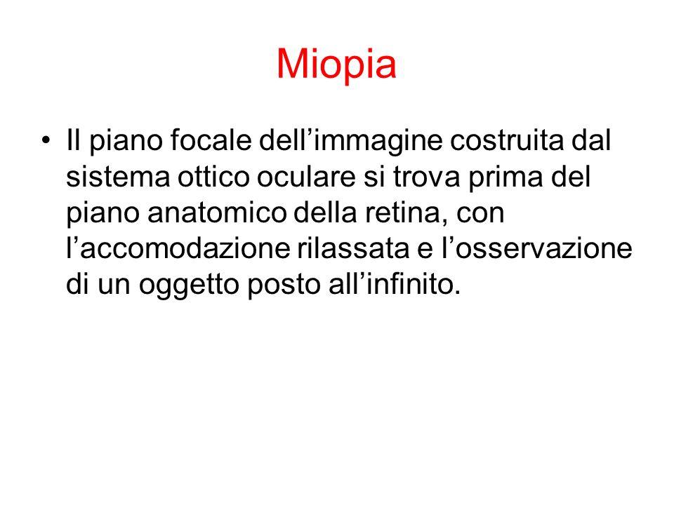 Miopia Il piano focale dellimmagine costruita dal sistema ottico oculare si trova prima del piano anatomico della retina, con laccomodazione rilassata