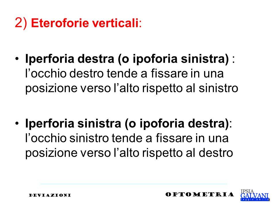 2) Eteroforie verticali: Iperforia destra (o ipoforia sinistra) : locchio destro tende a fissare in una posizione verso lalto rispetto al sinistro Ipe