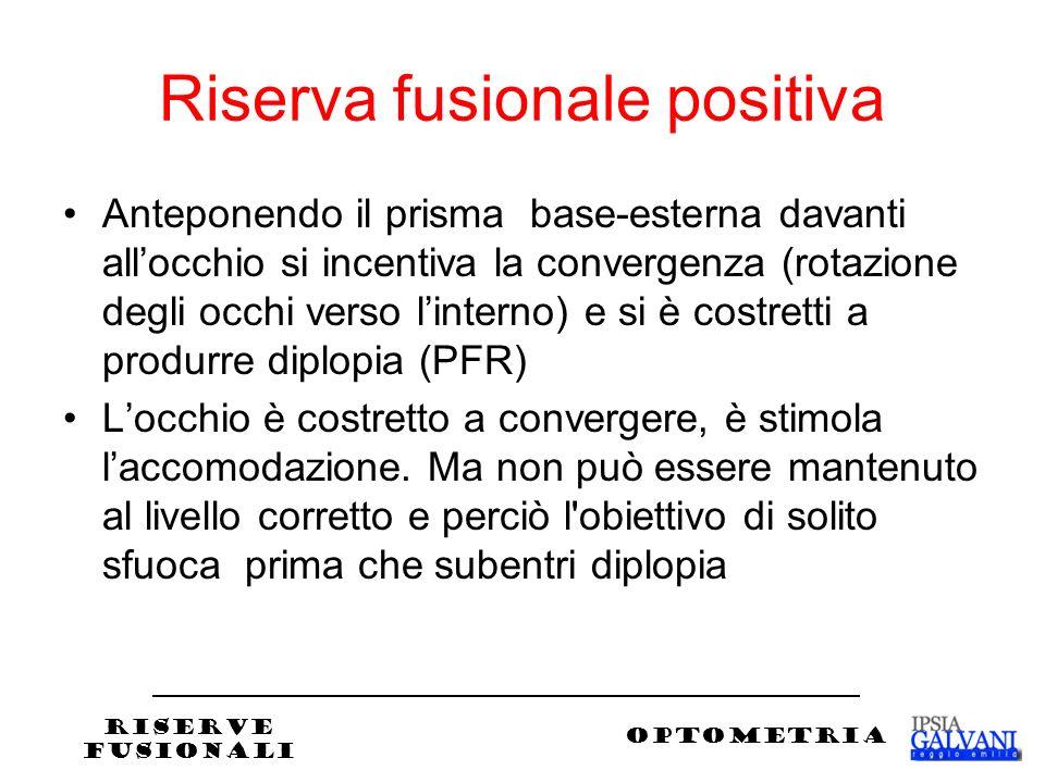 Riserva fusionale positiva Anteponendo il prisma base-esterna davanti allocchio si incentiva la convergenza (rotazione degli occhi verso linterno) e si è costretti a produrre diplopia (PFR) Locchio è costretto a convergere, è stimola laccomodazione.