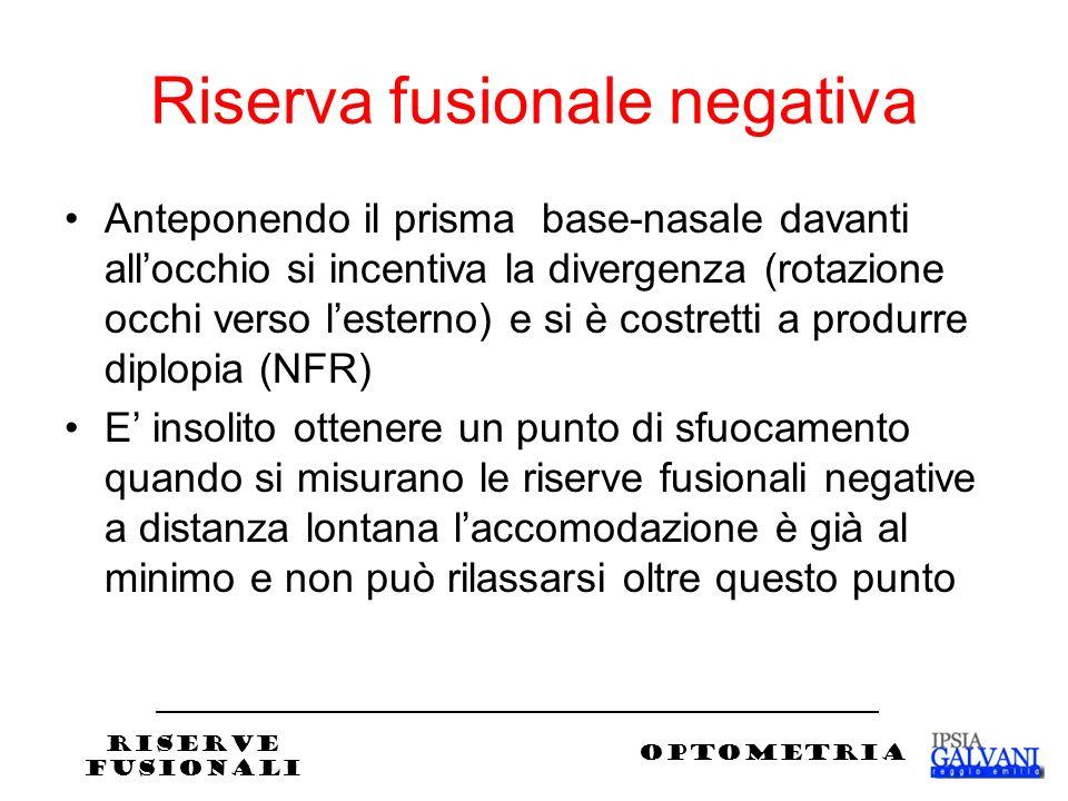 Riserva fusionale negativa Anteponendo il prisma base-nasale davanti allocchio si incentiva la divergenza (rotazione occhi verso lesterno) e si è cost