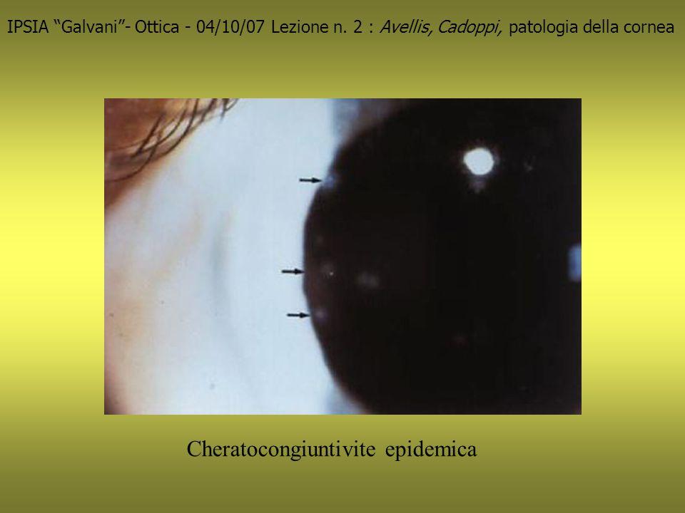 Cheratocongiuntivite epidemica IPSIA Galvani- Ottica - 04/10/07 Lezione n.