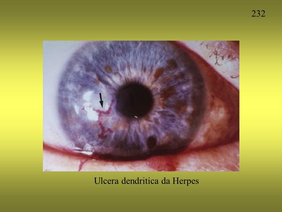 Ulcera dendritica da Herpes 232