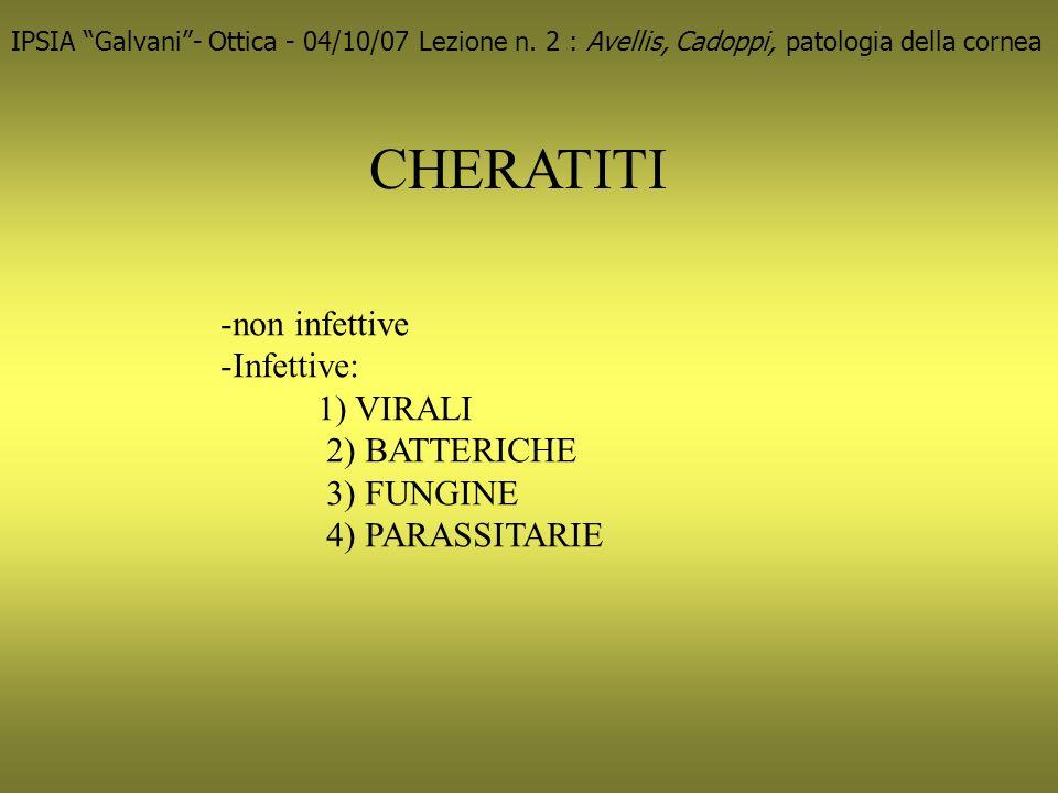 CHERATITI IPSIA Galvani- Ottica - 04/10/07 Lezione n.