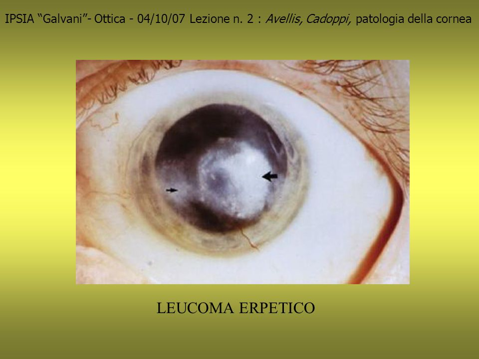 LEUCOMA ERPETICO IPSIA Galvani- Ottica - 04/10/07 Lezione n.
