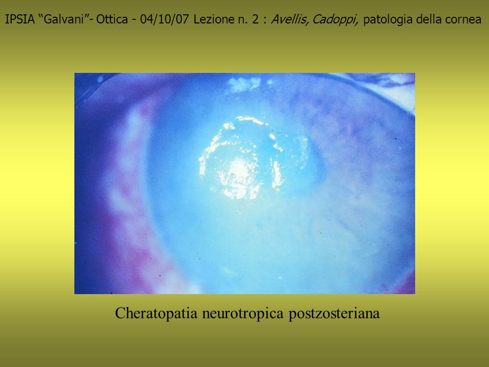 Cheratopatia neurotropica postzosteriana IPSIA Galvani- Ottica - 04/10/07 Lezione n.