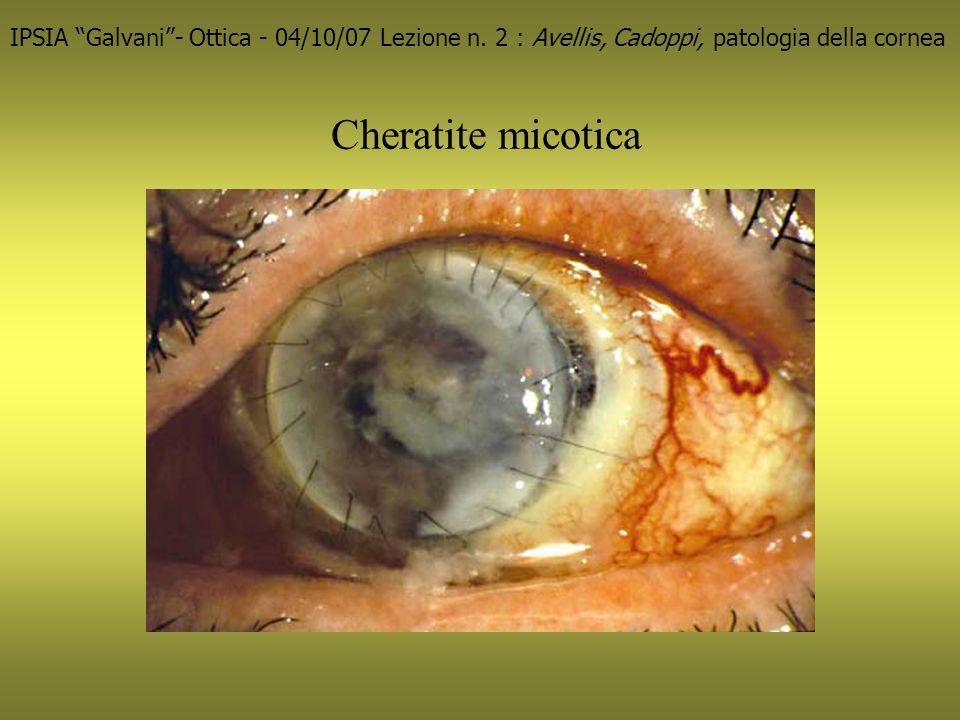 Cheratite micotica