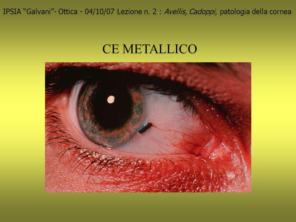 ABRASIONI IPSIA Galvani- Ottica - 04/10/07 Lezione n. 2 : Avellis, Cadoppi, patologia della cornea