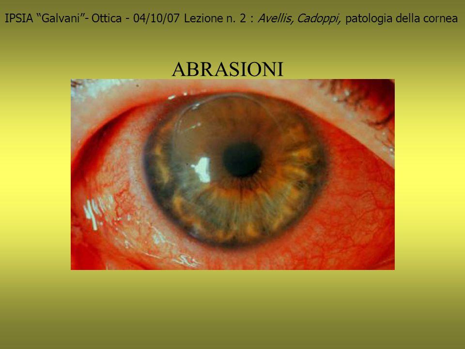 Herpes simplex IPSIA Galvani- Ottica - 04/10/07 Lezione n.