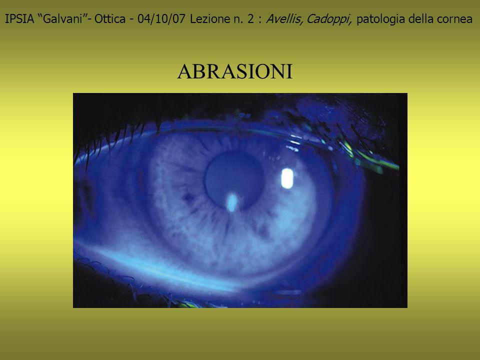 Leucoma corneale posttraumatico 212