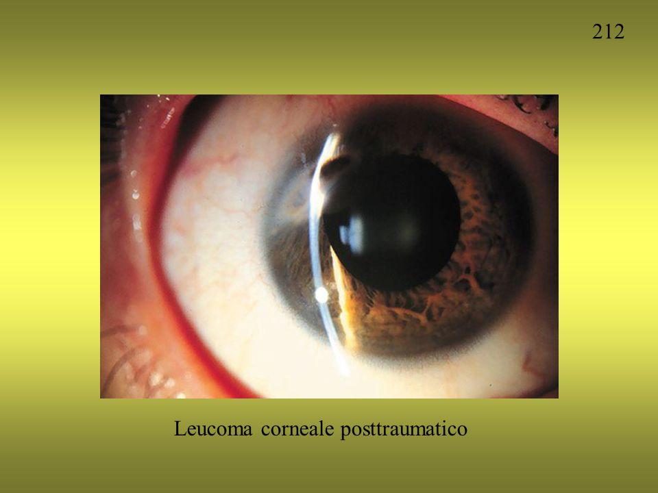 LEUCOMA VASCOLARIZZATO IPSIA Galvani- Ottica - 04/10/07 Lezione n.