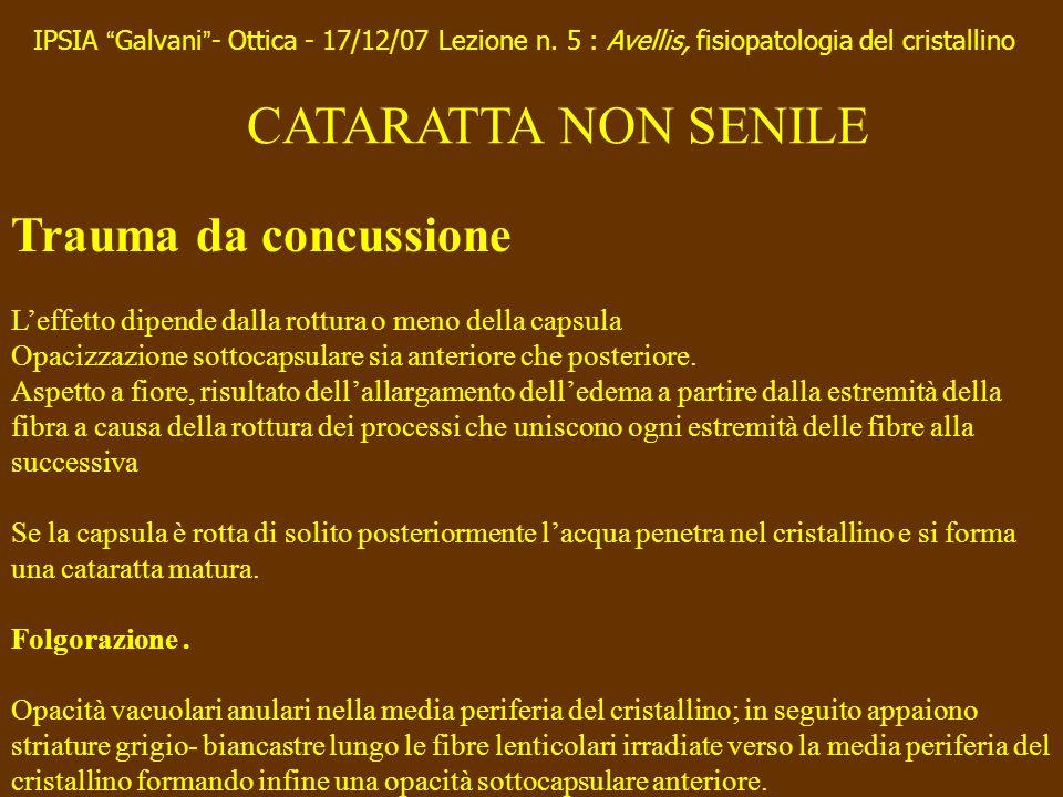 CATARATTA NON SENILE Trauma da concussione Leffetto dipende dalla rottura o meno della capsula Opacizzazione sottocapsulare sia anteriore che posterio