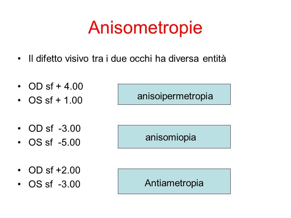 Anisometropie Il difetto visivo tra i due occhi ha diversa entità OD sf + 4.00 OS sf + 1.00 OD sf -3.00 OS sf -5.00 OD sf +2.00 OS sf -3.00 anisoiperm