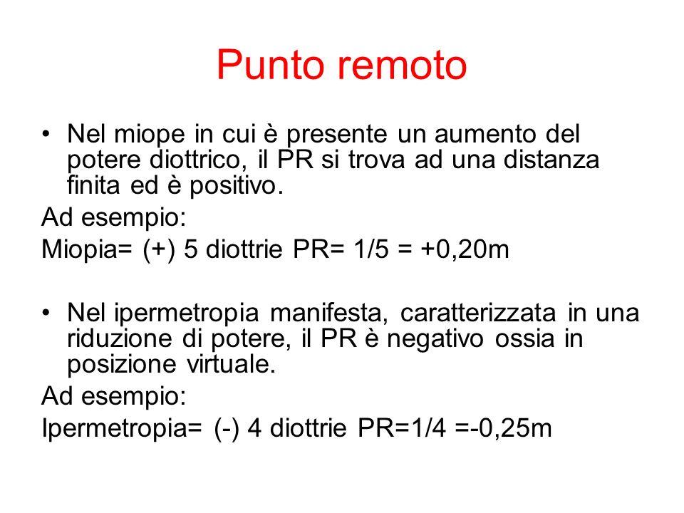 Punto remoto Nel miope in cui è presente un aumento del potere diottrico, il PR si trova ad una distanza finita ed è positivo. Ad esempio: Miopia= (+)