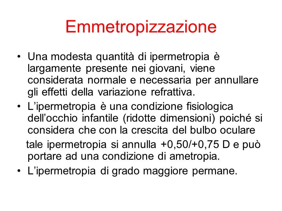 Emmetropizzazione Una modesta quantità di ipermetropia è largamente presente nei giovani, viene considerata normale e necessaria per annullare gli eff