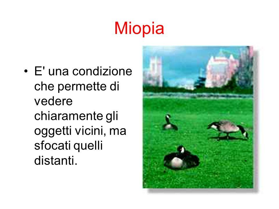 Miopia E' una condizione che permette di vedere chiaramente gli oggetti vicini, ma sfocati quelli distanti.