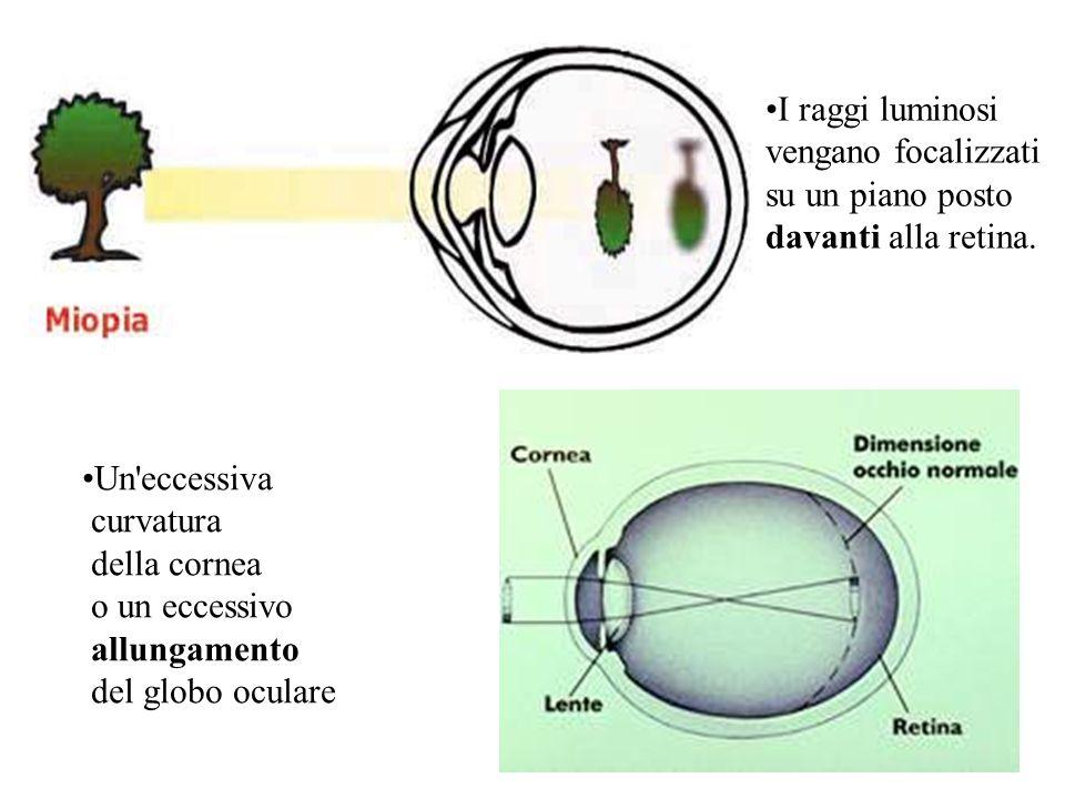 Ipermetropia I raggi luminosi provenienti da oggetti sia vicini che lontani non vengono messi a fuoco sulla retina, bensì su un piano dietro di essa.