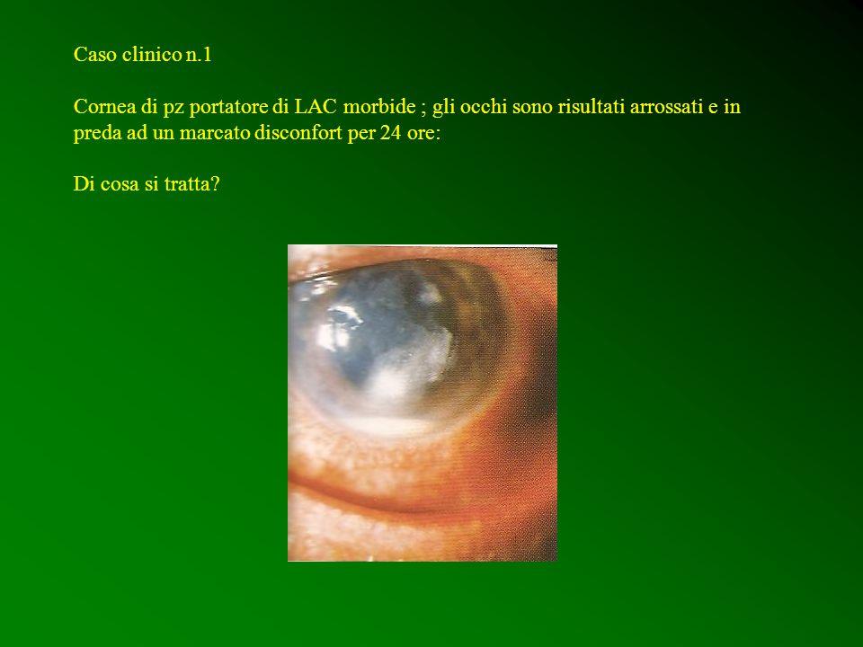 Caso clinico n.1 Cornea di pz portatore di LAC morbide ; gli occhi sono risultati arrossati e in preda ad un marcato disconfort per 24 ore: Di cosa si
