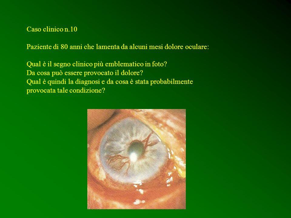 Caso clinico n.10 Paziente di 80 anni che lamenta da alcuni mesi dolore oculare: Qual è il segno clinico più emblematico in foto? Da cosa può essere p