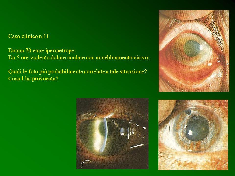 Caso clinico n.11 Donna 70 enne ipermetrope: Da 5 ore violento dolore oculare con annebbiamento visivo: Quali le foto più probabilmente correlate a ta