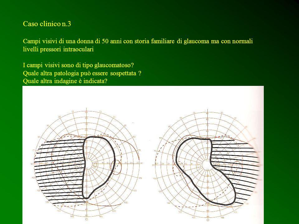 Caso clinico n.4 disco ottico di uomo di 81 anni la cui pressione intraoculare è 12 quale è la diagnosi più probabile.