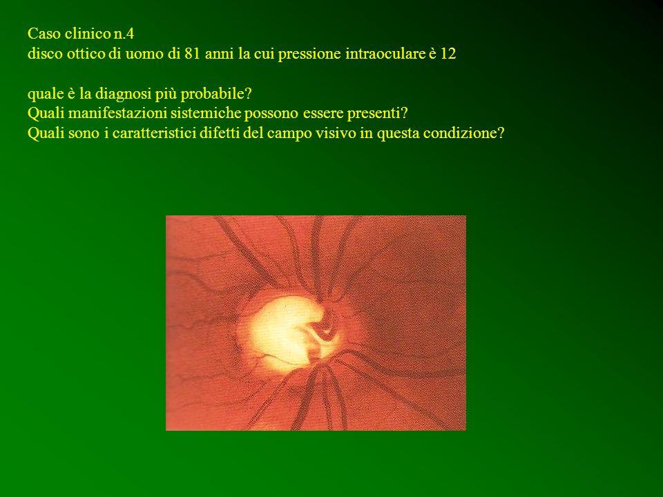 Caso clinico n.4 disco ottico di uomo di 81 anni la cui pressione intraoculare è 12 quale è la diagnosi più probabile? Quali manifestazioni sistemiche