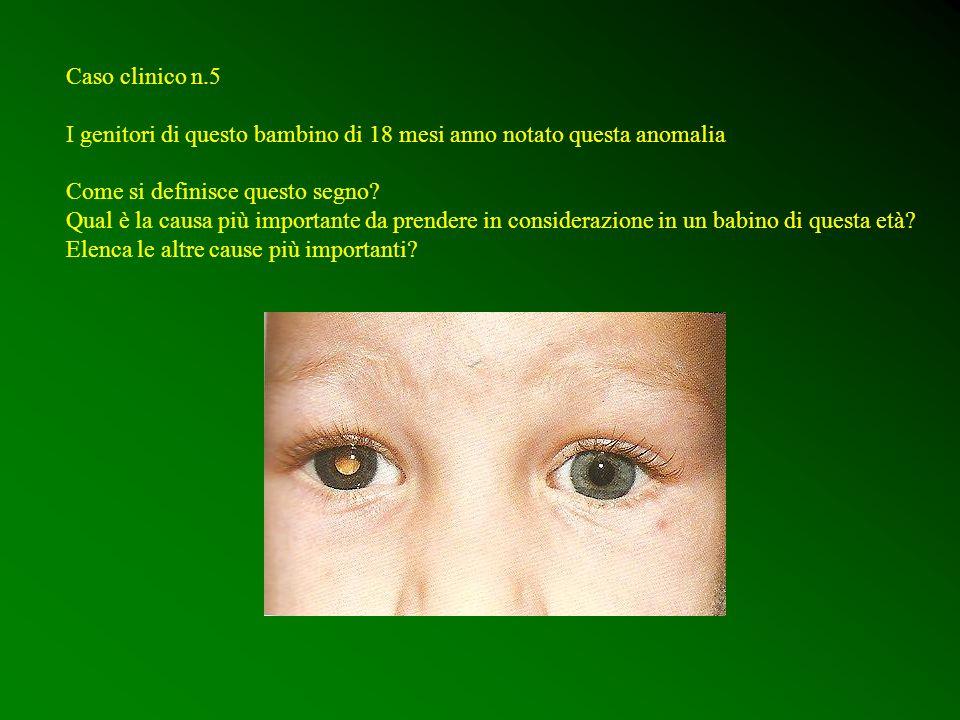 Caso clinico n.5 I genitori di questo bambino di 18 mesi anno notato questa anomalia Come si definisce questo segno? Qual è la causa più importante da