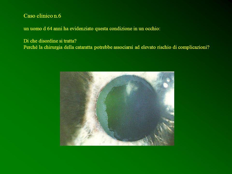 Caso clinico n.6 un uomo d 64 anni ha evidenziato questa condizione in un occhio: Di che disordine si tratta? Perché la chirurgia della cataratta potr