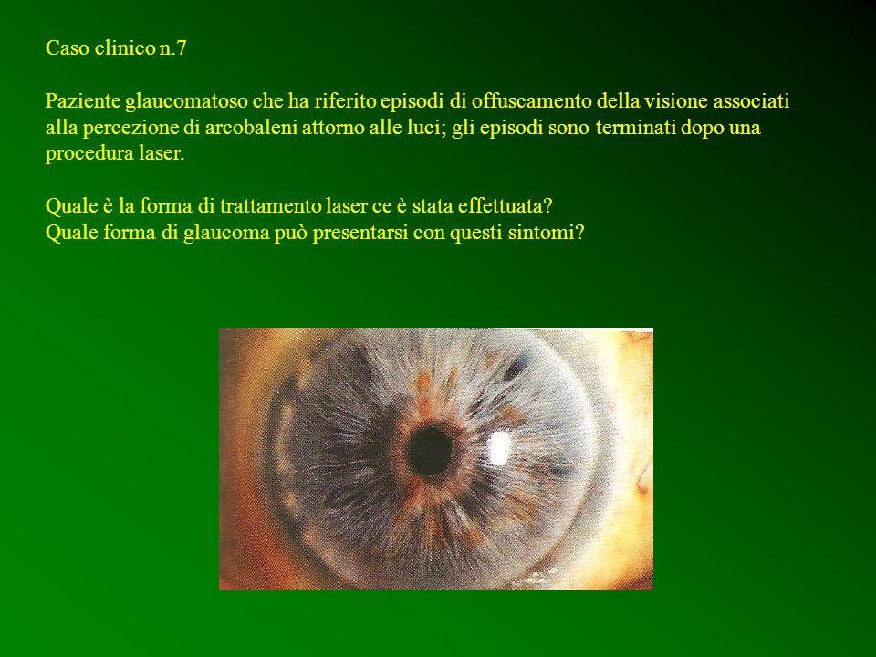 Caso clinico n.7 Paziente glaucomatoso che ha riferito episodi di offuscamento della visione associati alla percezione di arcobaleni attorno alle luci