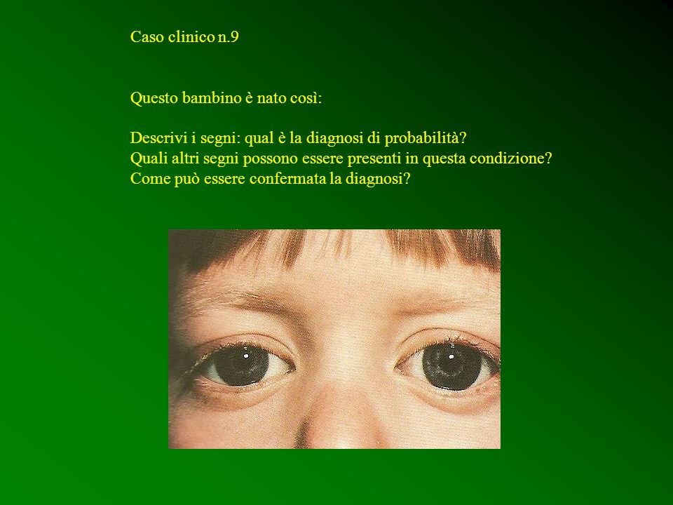 Caso clinico n.9 Questo bambino è nato così: Descrivi i segni: qual è la diagnosi di probabilità? Quali altri segni possono essere presenti in questa