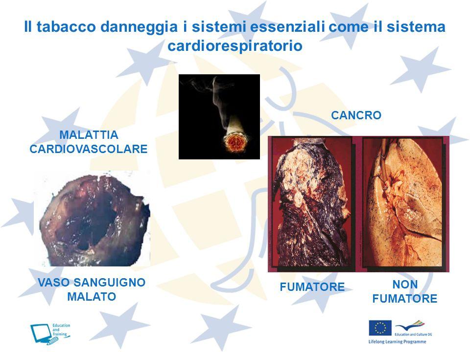 Il tabacco danneggia i sistemi essenziali come il sistema cardiorespiratorio MALATTIA CARDIOVASCOLARE CANCRO VASO SANGUIGNO MALATO FUMATORE NON FUMATO