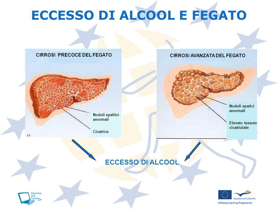 ECCESSO DI ALCOOL E FEGATO ECCESSO DI ALCOOL CIRROSI PRECOCE DEL FEGATO CIRROSI AVANZATA DEL FEGATO Noduli epatici anormali Elevato tessuto cicatrizia