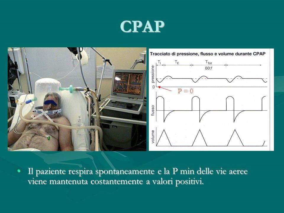 CPAP Il paziente respira spontaneamente e la P min delle vie aeree viene mantenuta costantemente a valori positivi.Il paziente respira spontaneamente