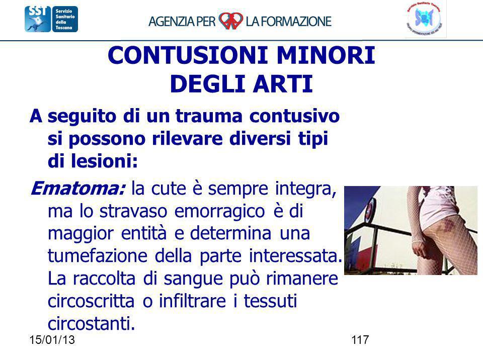 15/01/13117 CONTUSIONI MINORI DEGLI ARTI A seguito di un trauma contusivo si possono rilevare diversi tipi di lesioni: Ematoma: la cute è sempre integ