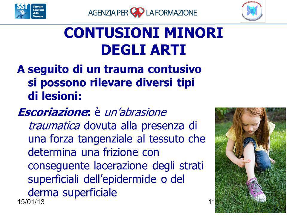 15/01/13118 CONTUSIONI MINORI DEGLI ARTI A seguito di un trauma contusivo si possono rilevare diversi tipi di lesioni: Escoriazione: è unabrasione tra