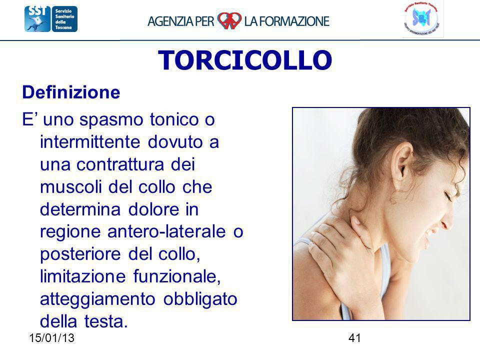 15/01/1341 TORCICOLLO Definizione E uno spasmo tonico o intermittente dovuto a una contrattura dei muscoli del collo che determina dolore in regione a