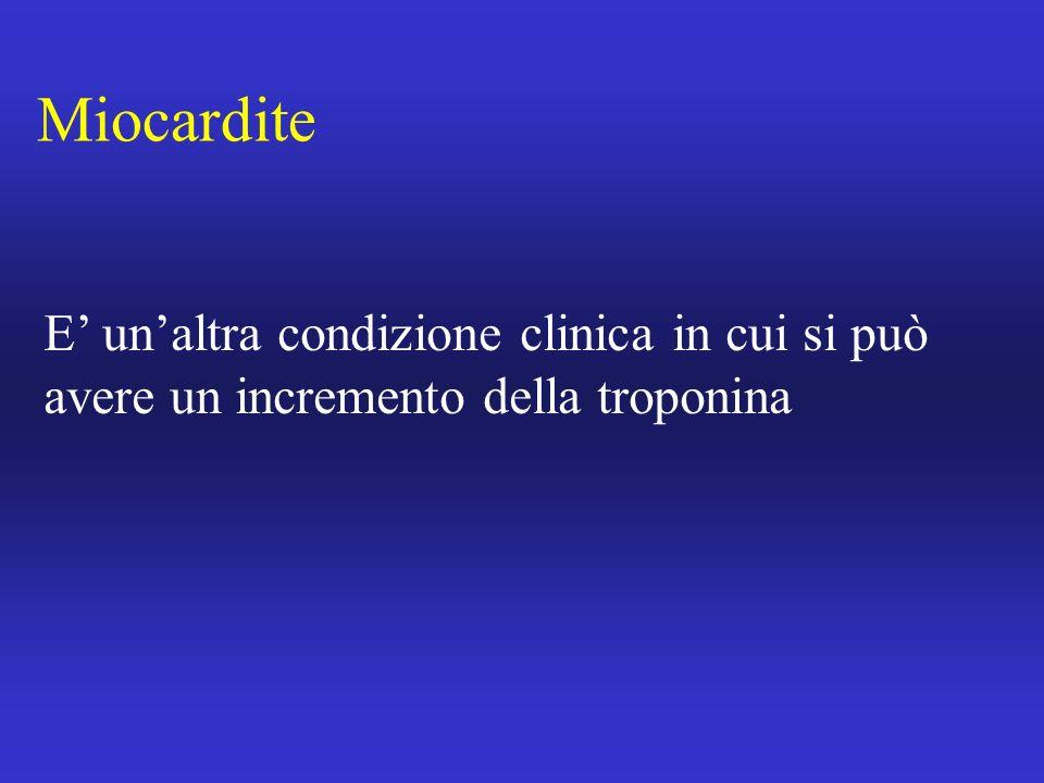 Miocardite E unaltra condizione clinica in cui si può avere un incremento della troponina