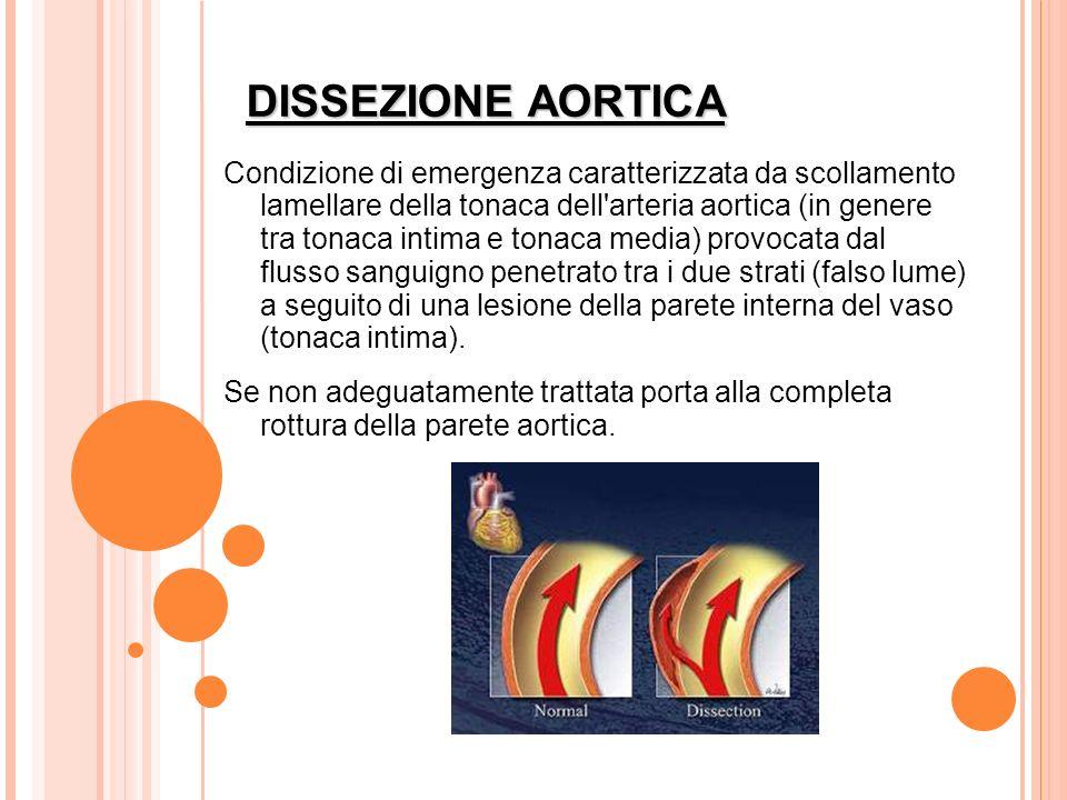 DISSEZIONE AORTICA Condizione di emergenza caratterizzata da scollamento lamellare della tonaca dell'arteria aortica (in genere tra tonaca intima e to