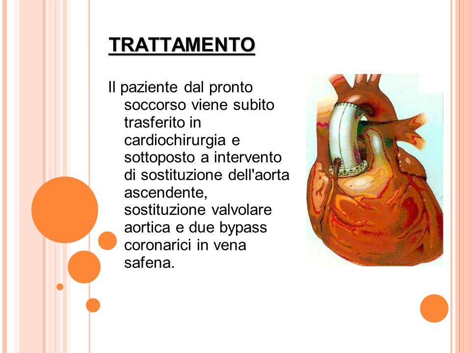 TRATTAMENTO Il paziente dal pronto soccorso viene subito trasferito in cardiochirurgia e sottoposto a intervento di sostituzione dell'aorta ascendente