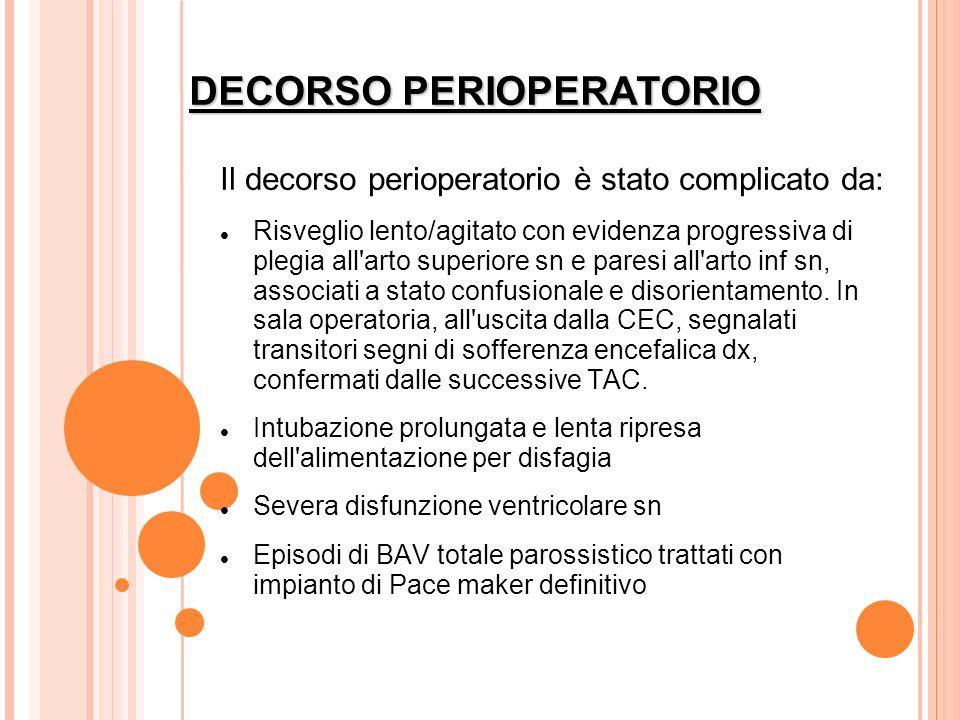 DECORSO PERIOPERATORIO Il decorso perioperatorio è stato complicato da: Risveglio lento/agitato con evidenza progressiva di plegia all'arto superiore