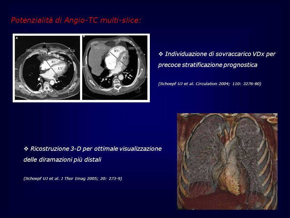 Potenzialità di Angio-TC multi-slice: Individuazione di sovraccarico VDx per precoce stratificazione prognostica (Schoepf UJ et al. Circulation 2004;