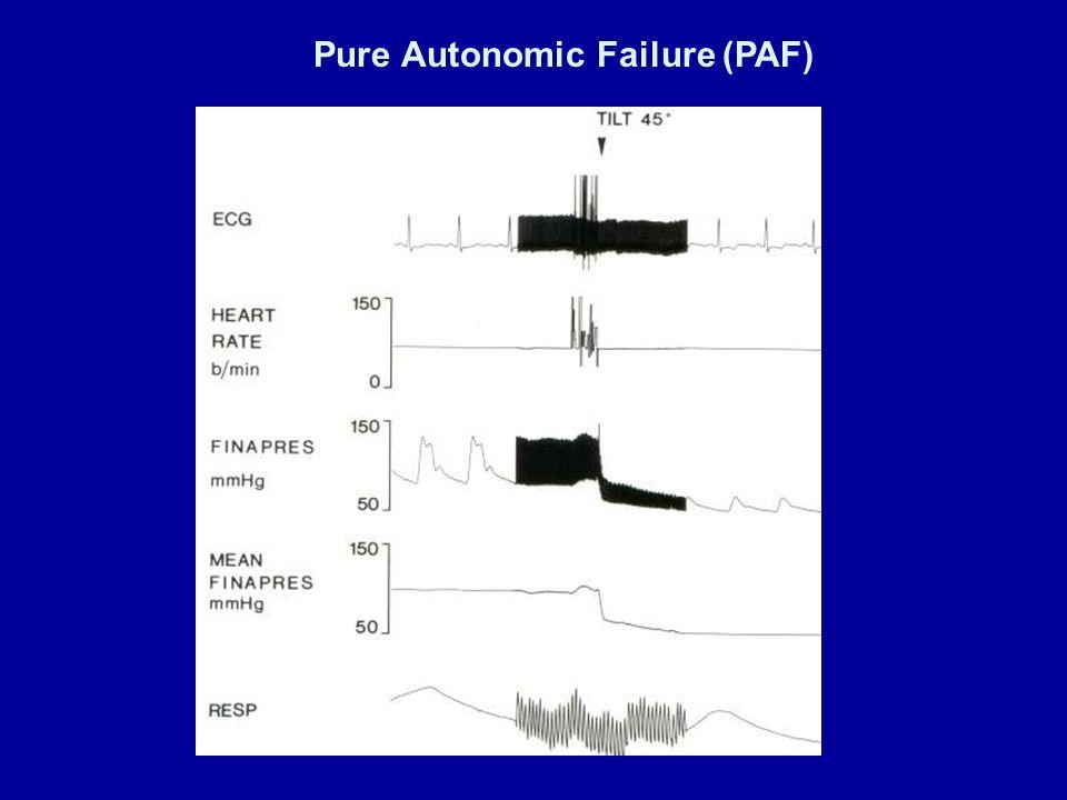 Pure Autonomic Failure (PAF)