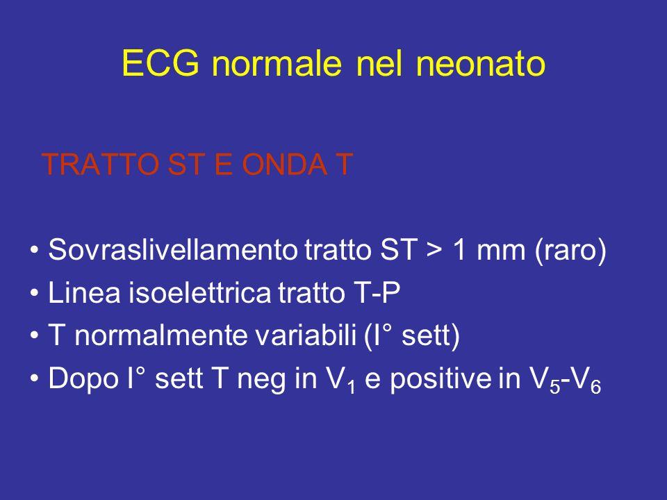 TRATTO ST E ONDA T Sovraslivellamento tratto ST > 1 mm (raro) Linea isoelettrica tratto T-P T normalmente variabili (I° sett) Dopo I° sett T neg in V