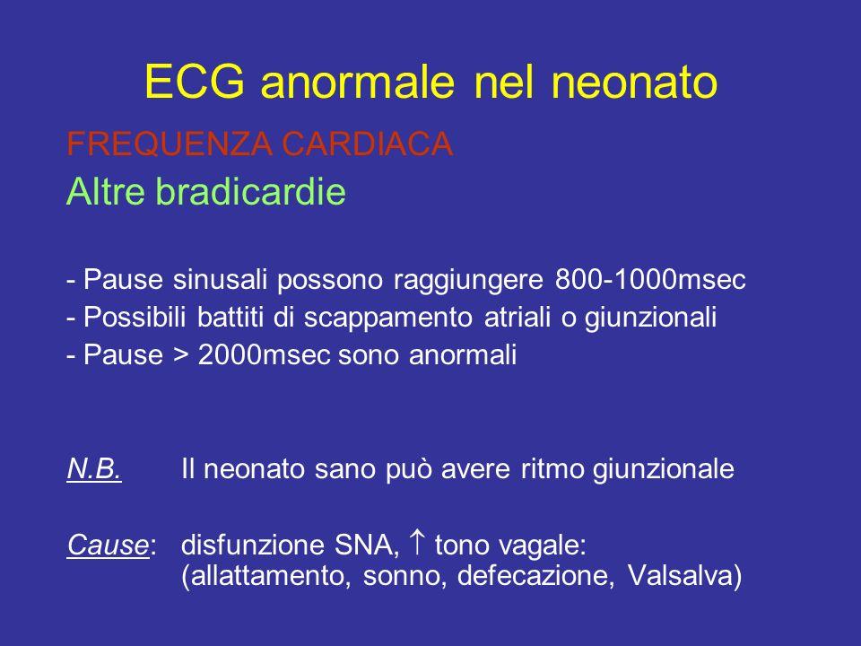 FREQUENZA CARDIACA Altre bradicardie - Pause sinusali possono raggiungere 800-1000msec - Possibili battiti di scappamento atriali o giunzionali - Paus