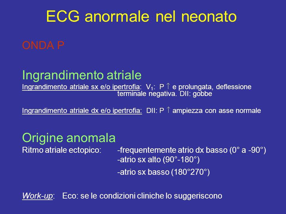 ONDA P Ingrandimento atriale Ingrandimento atriale sx e/o ipertrofia: V 1 : P e prolungata, deflessione terminale negativa. DII: gobbe Ingrandimento a