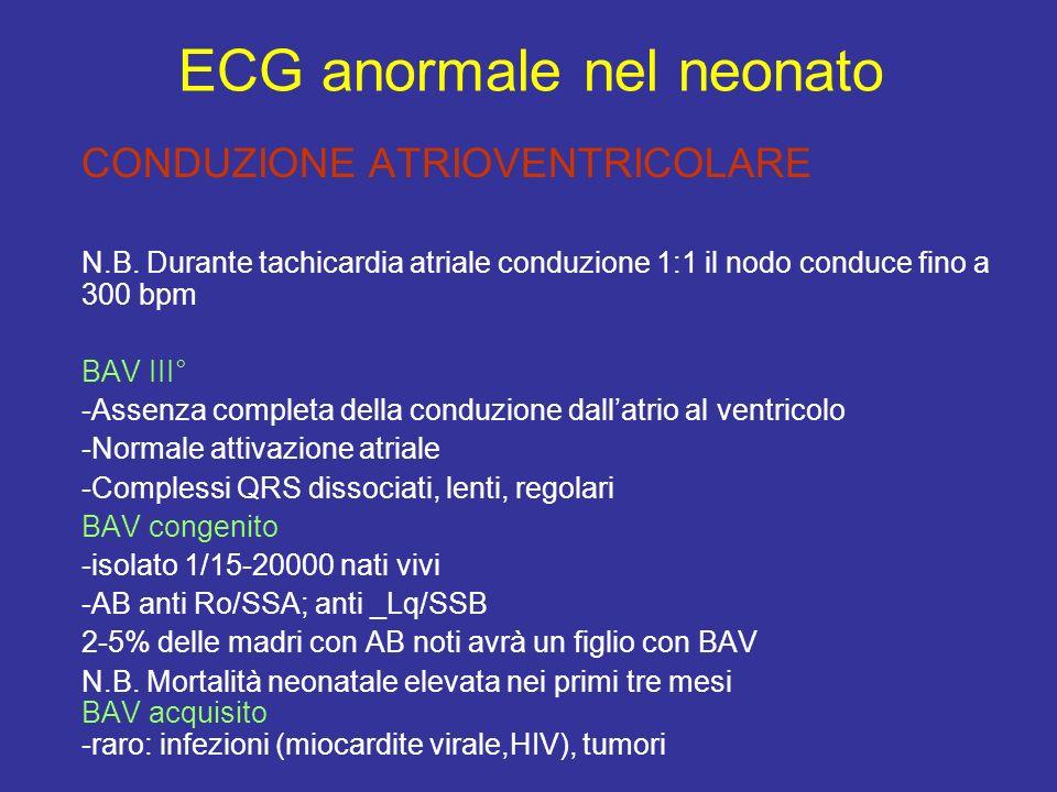 CONDUZIONE ATRIOVENTRICOLARE N.B. Durante tachicardia atriale conduzione 1:1 il nodo conduce fino a 300 bpm BAV III° -Assenza completa della conduzion
