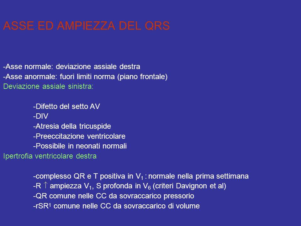 ASSE ED AMPIEZZA DEL QRS -Asse normale: deviazione assiale destra -Asse anormale: fuori limiti norma (piano frontale) Deviazione assiale sinistra: -Di