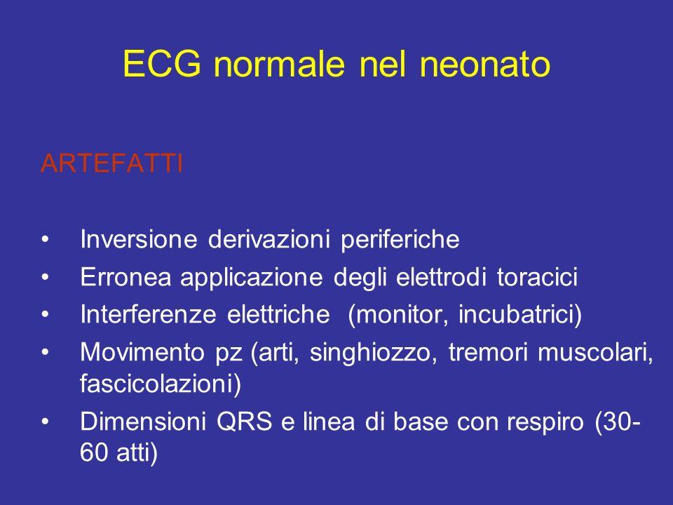 ARTEFATTI Inversione derivazioni periferiche Erronea applicazione degli elettrodi toracici Interferenze elettriche (monitor, incubatrici) Movimento pz